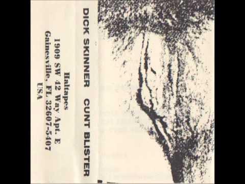 Dick Skinner - Cunt Blister mp3