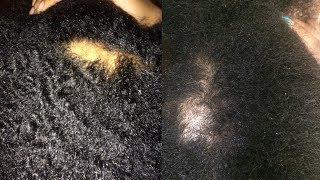 Chute de Cheveu ⎮ Traitement Médical ou Potion Magique 🤔