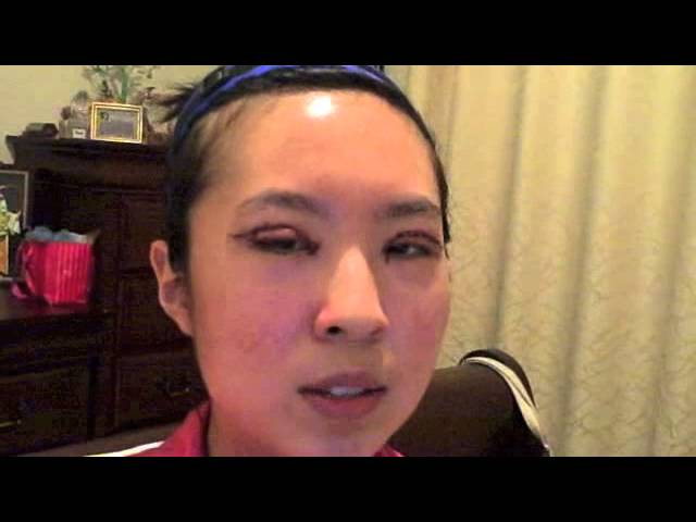 Asian Double Eyelid and Epicanthoplasty Video Diary in Dallas, Texas