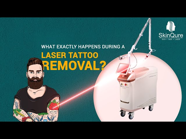 Laser Tattoo Removal   Details Explained   Infographics   Laser Treatment   SkinQure