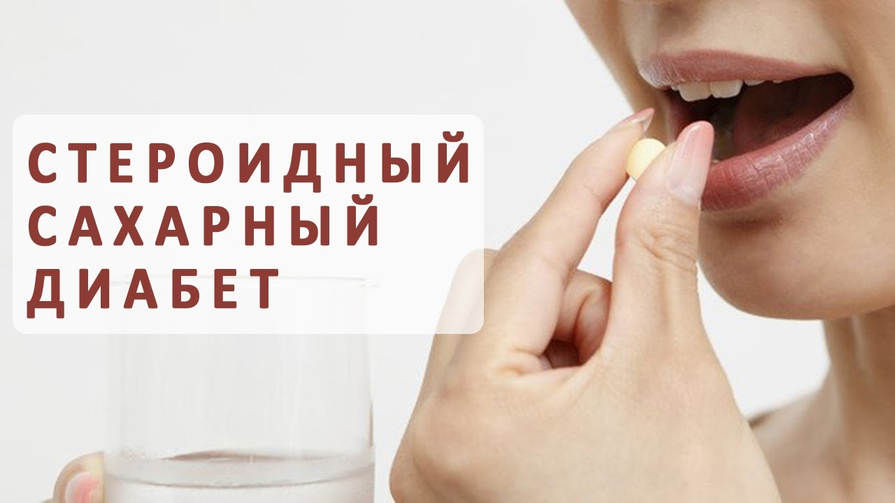 Как лечить стероидный сахарный диабет