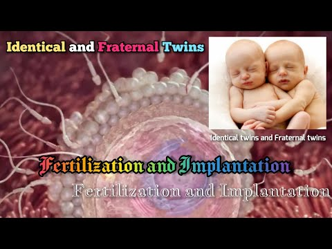 Fertilization and Implantation, Identical twins and Fraternal twins