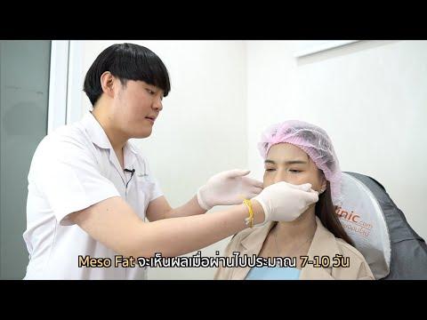 ## Lotte Show : ปังหรือพัง?! ฉีดเมโสแฟตแก้มให้หน้าเล็กลง ภายใน 1 อาทิตย์ ##