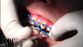 Repeat youtube video จัดฟันดัดฟัน เชนจัดฟัน เชนดัดฟัน