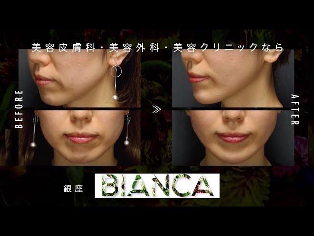 美容クリニック BIANCA CLINIC