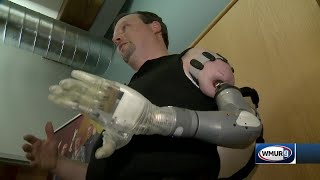 NC man finds hope with cutting-edge prosthetic developed in NH