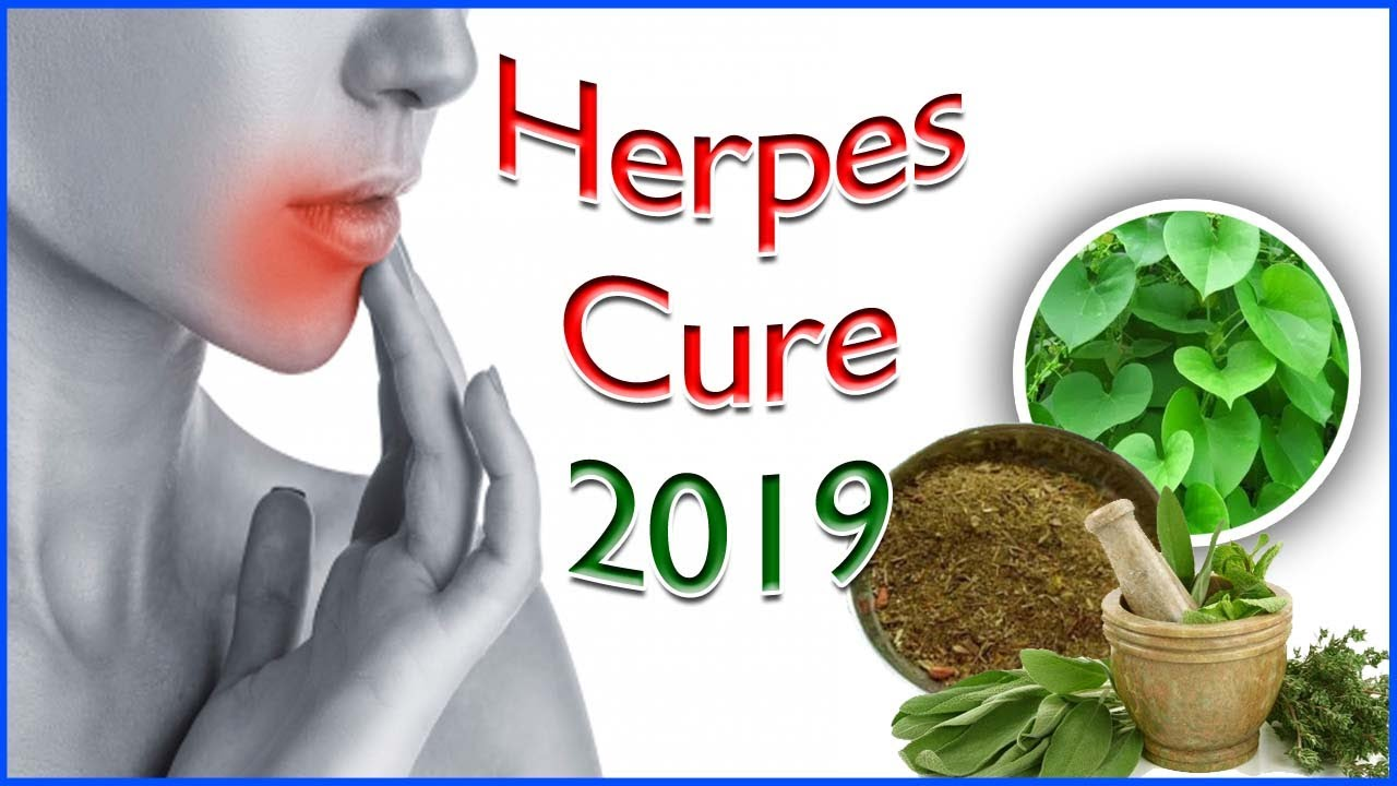 Herpes Cure 2019 - Ayurvedic Treatment For Herpes You Must Try - YouTube