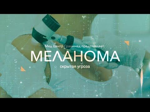 Меланома - скрытая угроза / Гравимед
