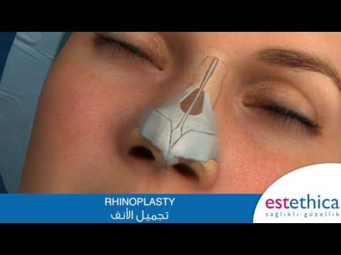 RHINOPLASTY عملية تجميل الأنف