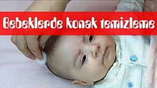 Bebeklerde oluşan konaklar nasıl temizlenir? #konak #kepek #temizlik