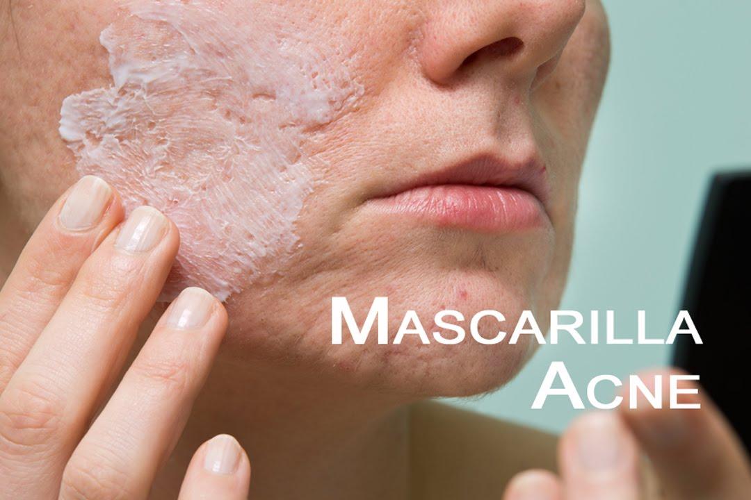 Mascarilla piel grasa para granos y acne natural youtube for Como quitar las manchas del marmol beige