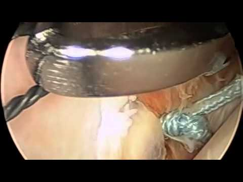 Dr. A. Shi Khan Perms an Arthroscopic Bankart Repair