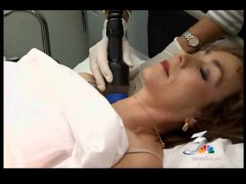 Dr. Samuels discusses VASER Shape on NBC News.wmv