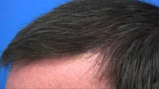 Hair Transplant Surgery by Dr Wong - 6407 Grafts - 3 Sessions