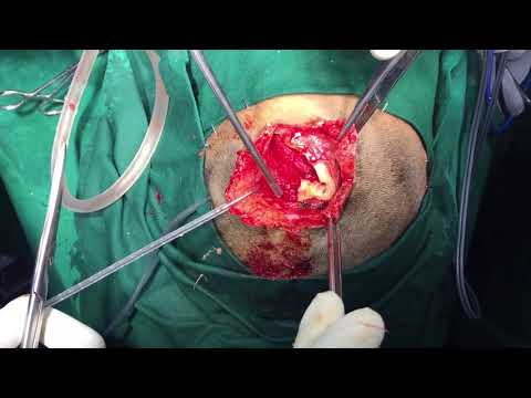 Head Injury - Depressed Skull Bone Fracture