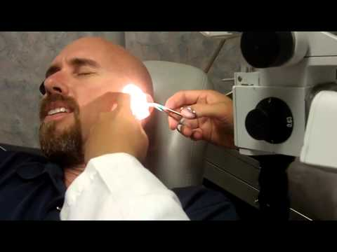 June Bug In My Ear Removal and Freak out! As seen on So You Think You'd Survive