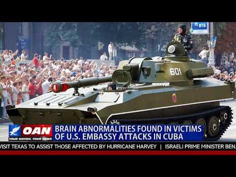 Brain Abnormalities Found in Victims of U.S. Embassy Attacks in Cuba