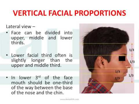 Facial Profiles: Dental Educational Material