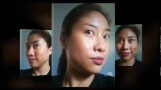 The journey with my skin...Acne treatment, VI Peel, Obagi NuDerm Condition and Enhance