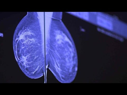 How To Catch Breast Cancer Early: Stanford Doctors Explain Mammography Options