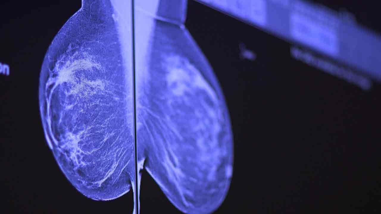 How To Catch Breast Cancer Early Stanford Doctors Explain