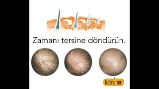 Natrumin Saç Derisi Uzmanı