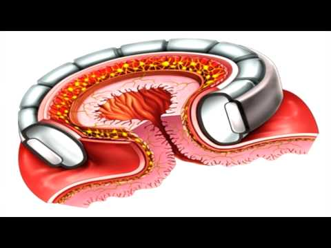 Professor Paul O'Brien: New Gastric Band Research