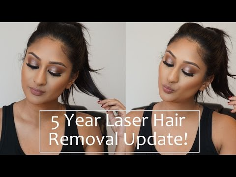 5 Year Full Body Laser Hair Removal Update! | Makeup By Megha