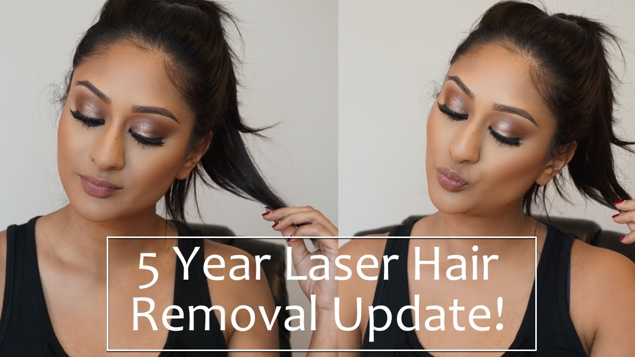 5 Year Full Body Laser Hair Removal Update Makeup By Megha Youtube