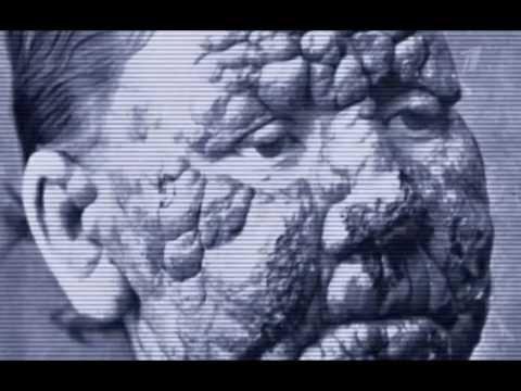 Документальный фильм 2014 Лихорадка Эбола. Вирус планетарного масштаба