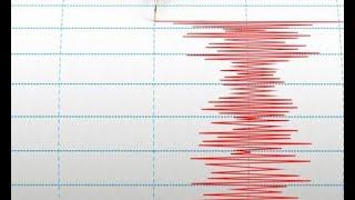 Kamis Pagi, Gempa Magnitudo 5.7 Guncang NTB