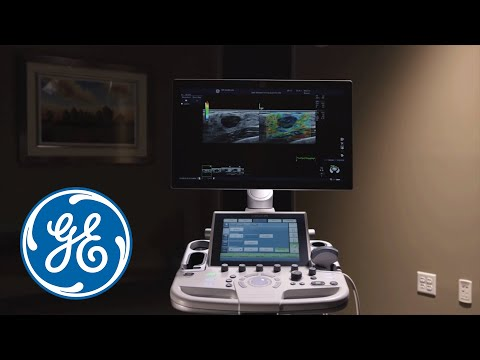 GE Healthcare LOGIQ P9 and LOGIQ P7 Ultrasound Overview Video