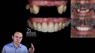Los implantes dentales NO son para todos | Ventajas y desventajas | Querétaro