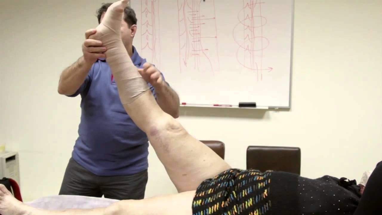 Эффективный крем от варикоза на ногах