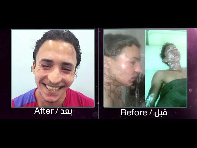 علاج الحروق مع البروفيسور الدكتور ابراهيم كامل - دار الجمال