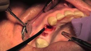 Atraumatic extraction and immediate implant placement