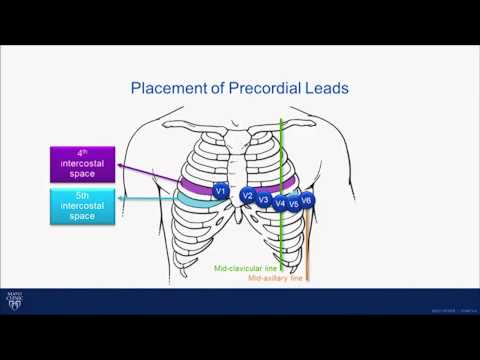 ECG Tutorial: Interpretation of the 15 Lead ECG in Children and Young Adults - Dr. Bryan Cannon