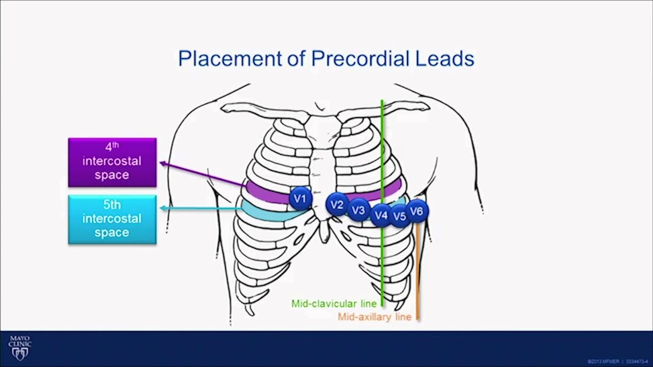 12 lead ekg placement diagram 99 honda accord fuse box ecg tutorial interpretation of the 15 in