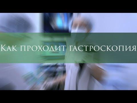 Гастроскопия  под седацией