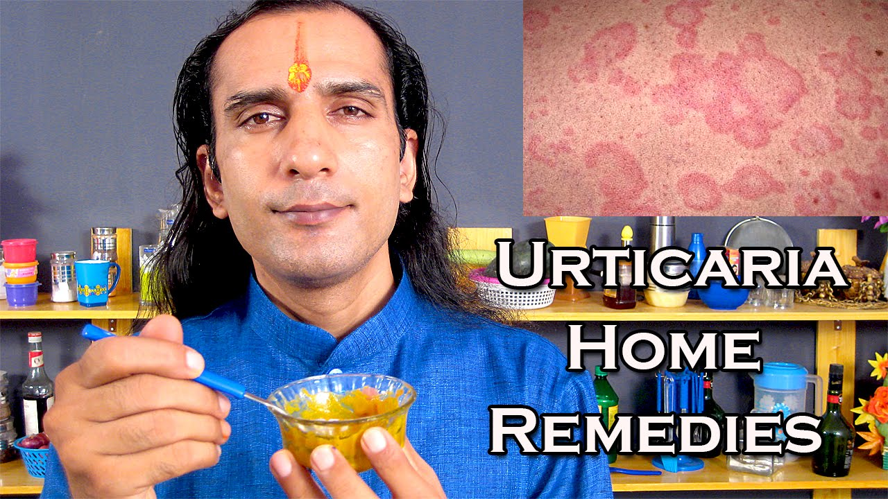 How To Cure Urticaria / Home Remedies For Urticaria @ ekunji
