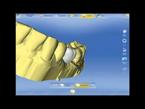 Dr. Neal Patel Live Surgery, Part 2 - Designing Virtual Restoration