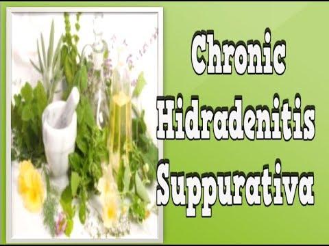 Chronic Hidradenitis Suppurativa, Home Remedies For Hidradenitis Suppurativa Boils