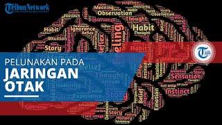 Info Penyakit Anoreksia RS Islam Surabaya - A. Yani.