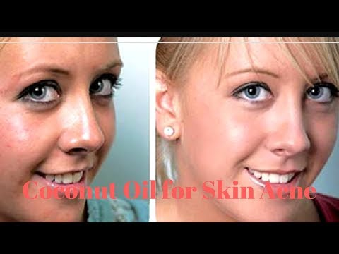 Coconut Oil for Skin Acne|Coconut Oil for Face Acne|Coconut Oil for Acne Prone Skin