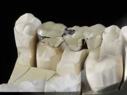 Stress Breaker PFM Bridge Fabrication Udell Dental Lab