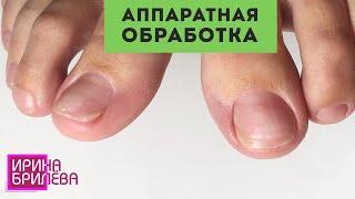 ПЕДИКЮР с помощью фрез и дисков 🌸 Аппаратная обработка стоп и пальцев 🌸 Ирина Брилёва