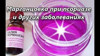 Марганцовка при псориазе и других заболеваниях