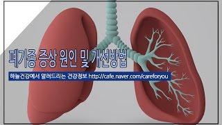 폐기종 증상 원인 및 개선방법 [ 하늘건강법 ]