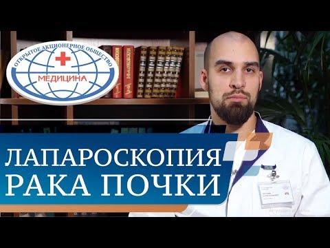 🔬 Рак почки: диагностика, операция, реабилитация. Рак почки операция. АО Медицина. 12+