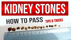 hqdefault - Passing Kidney Stone Tips